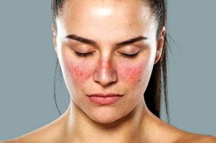 Kelebek hastalığı (Lupus) nedir